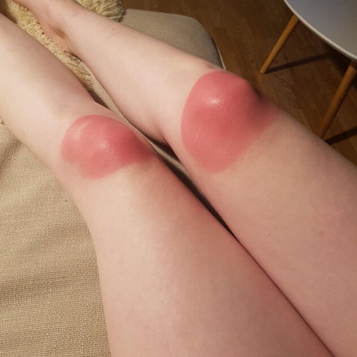 knee burn from ripped jeans