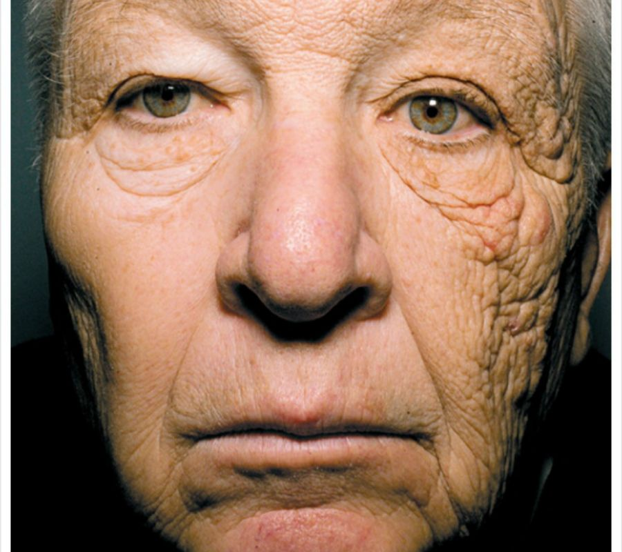 a person who used to drive a truck has more damage on the side of their face that faces the sun
