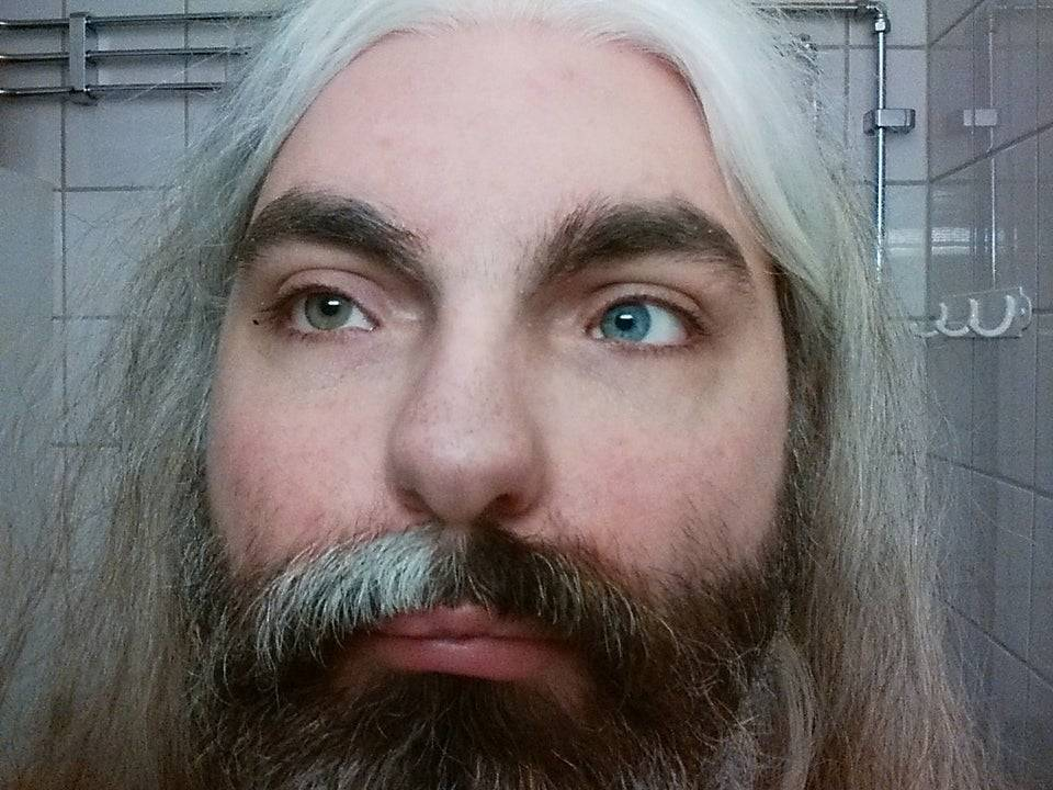 man with half white hair, different color eyes and partial deafness