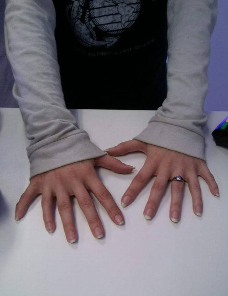 woman with six fingers on each hand